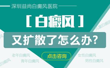 深圳白癜风遗传人吗