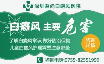 深圳白癜风会遗传给后代吗