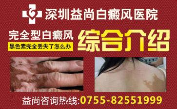 深圳白癜风的治疗费用